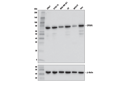 Western blot analysis of extracts from various cell lines using CPSF6 Antibody (upper) and β-Actin (D6A8) Rabbit mAb #8457 (lower).