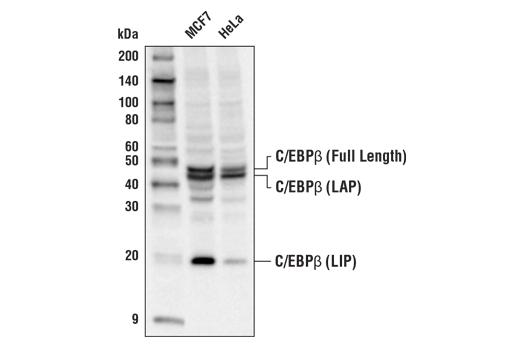 Polyclonal Antibody - C/EBPβ Antibody - Western Blotting, UniProt ID P17676, Entrez ID 1051 #90081