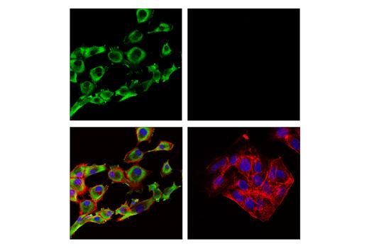 Monoclonal Antibody - ALDH1A2 (E6O6Q) Rabbit mAb, UniProt ID O94788, Entrez ID 8854 #55481, Aldh1a2