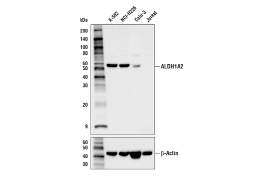 Western blot analysis of extracts from various cell lines using ALDH1A2 (E6O6Q) Rabbit mAb (upper) and β-Actin (D6A8) Rabbit mAb #8457 (lower). Expression levels of ALDH1A2 among cell lines are consistent with expectations based on publicly available bioinformatic databases.