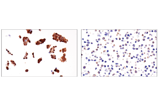 Immunohistochemical analysis of paraffin-embedded OV-90 cell pellet (left, high-expressing) or HBP-ALL cell pellet (right, low-expressing) using IDH1 (RcMab-1) Rat mAb.