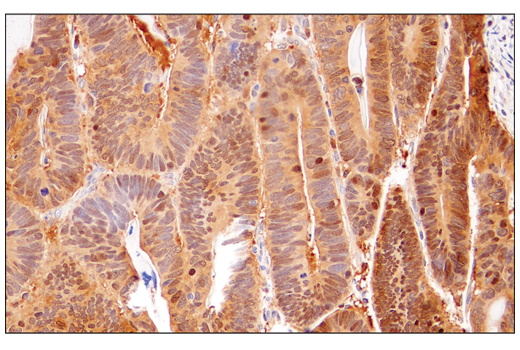 Immunohistochemical analysis of paraffin-embedded human colon adenocarcinoma using IDH1 (RcMab-1) Rat mAb.