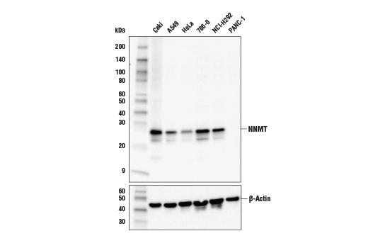 Polyclonal Antibody - NNMT Antibody - Western Blotting, UniProt ID P40261, Entrez ID 4837 #24912 - Primary Antibodies