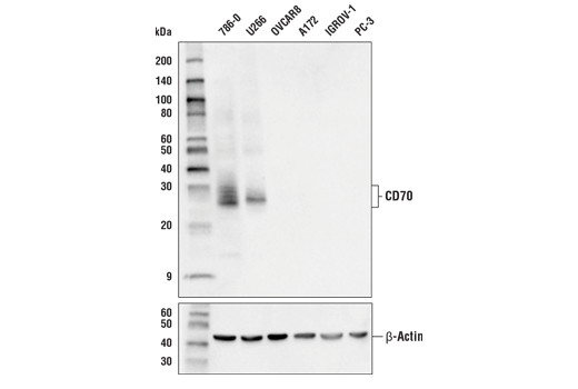 Western blot analysis of extracts from various cell lines using CD70 Antibody (upper) or β-Actin (D6A8) Rabbit mAb #8457 (lower).