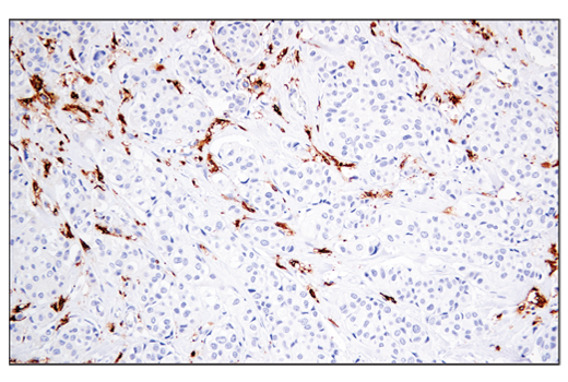 Immunohistochemical analysis of paraffin-embedded human ductal breast carcinoma using MHC Class II (LGII-612.14) Mouse mAb.