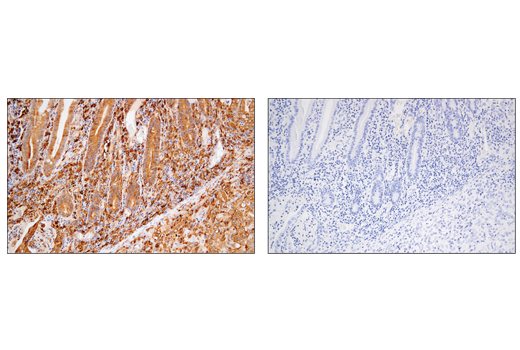 Immunohistochemical analysis of paraffin-embedded human colon carcinoma using MHC Class II (LGII-612.14) Mouse mAb (left) compared to concentration-matched Mouse (G3A1) mAb IgG1 Isotype Control #5415 (right).