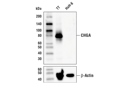 Western blot analysis of extracts from TT and HuH-6 cells using CHGA Antibody (upper), and β-Actin (D6A8) Rabbit mAb #8457 (lower). As expected, HuH-6 has low to negative expression of CHGA.