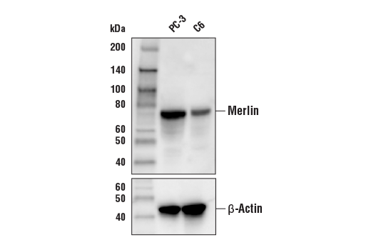 Western blot analysis of extracts from PC-3 and C6 cells using Merlin (D3S3W) Rabbit mAb (Biotinylated) (upper) and β-Actin (13E5) Rabbit mAb #4970 (lower).