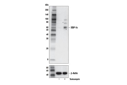 Monoclonal Antibody - XBP-1s (E9V3E) Rabbit mAb, UniProt ID O35426-2, Entrez ID 22433 #40435