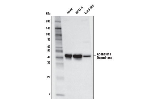 Western blot analysis of extracts from Jurkat, MOLT-4, and COLO 205 cells using Adenosine Deaminase (D1P4Y) Rabbit mAb.