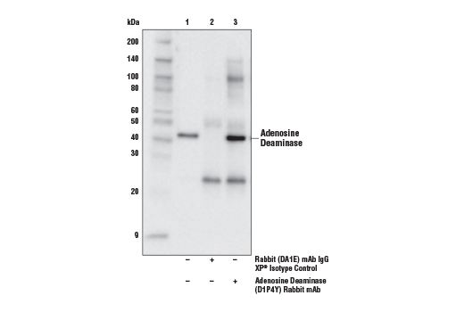 Immunoprecipitation of adenosine deaminase from Jurkat extracts. Lane 1 is 10% input, lane 2 is Rabbit (DA1E) mAb IgG XP<sup>®</sup> Isotype Control #3900, and lane 3 is Adenosine Deaminase (D1P4Y) Rabbit mAb. Western blot analysis was performed using Adenosine Deaminase (D1P4Y) Rabbit mAb. Mouse Anti-rabbit IgG (Conformation Specific) (L27A9) mAb (HRP Conjugate) #5127 was used as the secondary antibody.