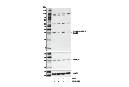 Western blot analysis of extracts from HCT 116 cells, vehicle-treated (-) or treated with Earle's Balanced Salt Solution (EBSS, 2 hr; +) and SBI-0206965 #29089 (50 μM, 2 hr; +) as indicated, using Phospho-AMPKβ2 (Ser39) Antibody (upper), AMPKβ2 Antibody #4148 (middle), or β-Actin (D6A8) Rabbit mAb #8457 (lower).