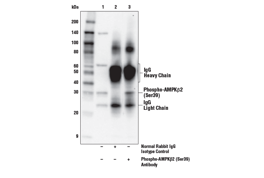 Immunoprecipitation of Phospho-AMPKβ2 (Ser39) from HCT 116 cell extracts starved using Earle's Balanced Salt Solution (EBSS, 2 hr). Lane 1 is 10% input, lane 2 is Normal Rabbit IgG #2729, and lane 3 is Phospho-AMPKβ2 (Ser39) Antibody. Western blot analysis was performed using Phospho-AMPKβ2 (Ser39) Antibody. Anti-rabbit IgG, HRP-linked Antibody #7074 was used as a secondary antibody.