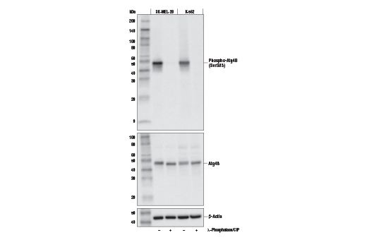 Western blot analysis of extracts from SK-MEL-28 and K-562 cells. Lysates were treated with (+) or without (-) Lambda Phosphatase (λ-Phosphatase) and Calf Intestinal Phosphatase (CIP). Western blot analysis was performed using Phospho-Atg4B (Ser383) Antibody (upper), Atg4B (D1G2R) Rabbit mAb #13507 (middle), or β-Actin (D6A8) Rabbit mAb #8457 (lower).