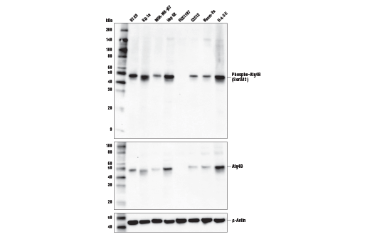 Western blot analysis of extracts from various cell lines using Phospho-Atg4B (Ser383) Antibody (upper), Atg4B (D1G2R) Rabbit mAb #13507 (middle), or β-Actin (D6A8) Rabbit mAb #8457 (lower).