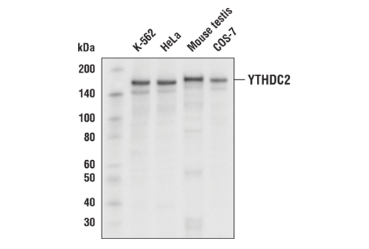 Western blot analysis of extracts from various cell lines and tissues using YTHDC2 Antibody.