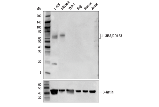Polyclonal Antibody - IL3RA/CD123 Antibody - Western Blotting, UniProt ID P26951, Entrez ID 3563 #57481 - Primary Antibodies