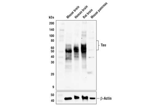 Western blot analysis of extracts from various mouse, human, and rat tissues using Tau 3R Antibody (upper) or β-actin (D6A8) Rabbit mAb #8457 (lower).