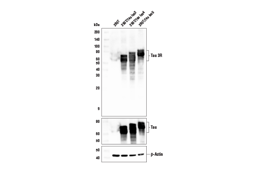Western blot analysis of extracts from 293T cells, untransfected (-) or transfected with Tau isoforms 2, 4, 5 (+), using Tau 3R Antibody (upper), Tau (D1M9X) XP<sup>®</sup>Rabbit mAb #46687 (middle), and β-actin (D6A8) Rabbit mAb #8457 (lower) .
