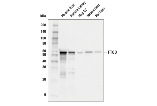Western blot analysis of extracts from various tissues and Hep G2 cells using FTCD (D1R3F) Rabbit mAb.