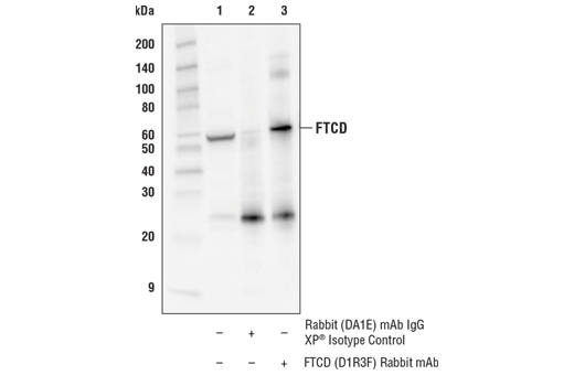 Immunoprecipitation of FTCD from Hep G2 extracts. Lane 1 is 10% input, lane 2 is Rabbit (DA1E) mAb IgG XP<sup>®</sup> Isotype Control #3900, and lane 3 is FTCD (D1R3F) Rabbit mAb. Western blot analysis was performed using FTCD (D1R3F) Rabbit mAb. Mouse Anti-rabbit IgG (Conformation Specific) (L27A9) mAb (HRP Conjugate) #5127 was used as the secondary antibody.