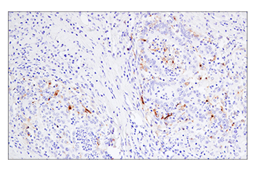 Immunohistochemical analysis of paraffin-embedded human colon carcinoma using 4-1BB/CD137/TNFRSF9 (E6Z7F) XP<sup>®</sup> Rabbit mAb.