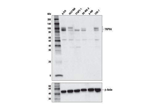 Polyclonal Antibody Western Blotting Response to Osmotic Stress