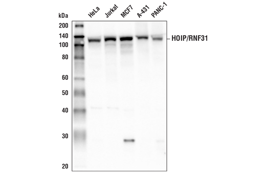 Western blot analysis of extracts from various cell lines using HOIP/RNF31 (E6M5B) Rabbit mAb.