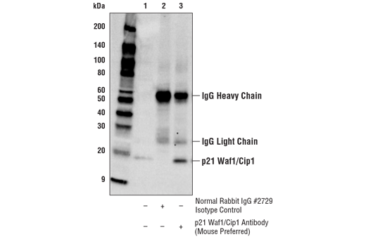 Immunoprecipitation Image 1: p21 Waf1/Cip1 Antibody (Mouse Preferred)