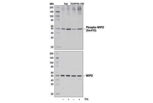 Western blot analysis of extracts from Raji and KARPAS-299 cells, untreated (-) or treated with TPA #4174 (200 nM, 30 min; +) using Phospho-WIPI2 (Ser413) Antibody (upper) or total WIPI2 Antibody #8567 (lower).