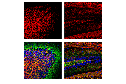 Confocal immunofluorescent analysis of mouse cerebellum (left) and hippocampus (right) using Myelin Basic Protein (D8X4Q) XP<sup>®</sup> Rabbit mAb (Alexa Fluor<sup>®</sup> 555 Conjugate) (red) and Neurofilament-L (C28E10) Rabbit mAb (Alexa Fluor<sup>®</sup> 488 Conjugate) #8024 (green). Samples were mounted in ProLong<sup>®</sup> Gold Antifade Reagent with DAPI #8961 (blue).
