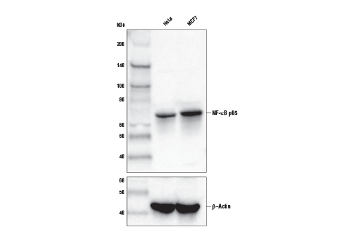 Western blot analysis of extracts from HeLa and MCF7 cells using NF-κB p65 (D14E12) XP<sup>®</sup> Rabbit mAb (Biotinylated) (upper) and β-Actin (13E5) Rabbit mAb #4970 (lower).