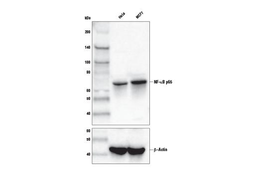 Monoclonal Antibody - NF-κB p65 (D14E12) XP® Rabbit mAb (Biotinylated), UniProt ID Q04206, Entrez ID 5970 #30656 - Immunology and Inflammation