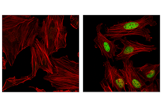 Monoclonal Antibody - ATF-4 (E4Q4E) Mouse mAb, UniProt ID P18848, Entrez ID 468 #97038