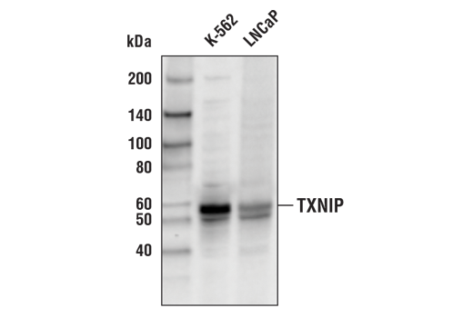 Western blot analysis of extracts from K-562 and LNCaP cells using TXNIP (D5F3E) Rabbit mAb (Biotinylated).