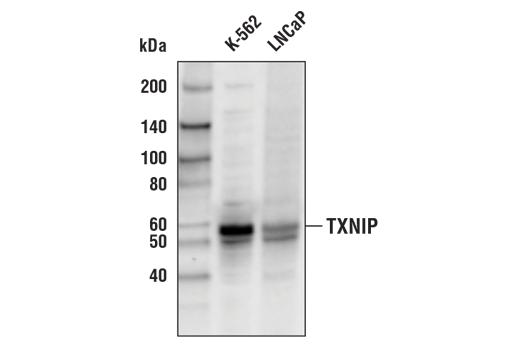 Monoclonal Antibody - TXNIP (D5F3E) Rabbit mAb (Biotinylated), UniProt ID Q9H3M7, Entrez ID 10628 #67280