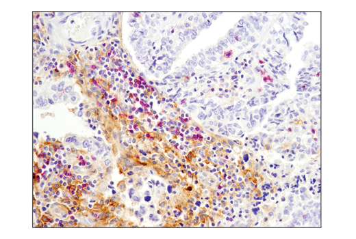Immunohistochemistry Image 1: SignalStain® Boost IHC Detection Reagent (AP, Mouse)
