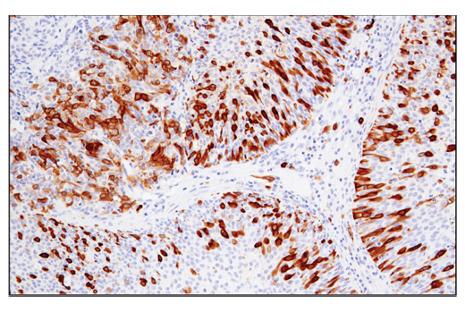 Immunohistochemical analysis of paraffin-embedded human urothelial carcinoma using RRM2 (E7Y9J) XP<sup>®</sup> Rabbit mAb.
