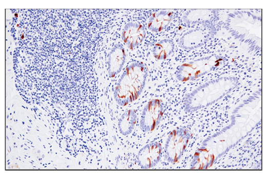Immunohistochemical analysis of paraffin-embedded human appendix using RRM2 (E7Y9J) XP<sup>®</sup> Rabbit mAb.