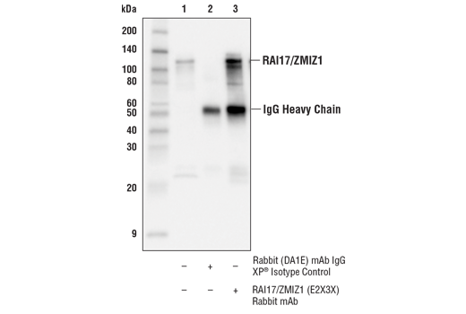 Immunoprecipitation Image 1: RAI17/ZMIZ1 (E2X3X) Rabbit mAb