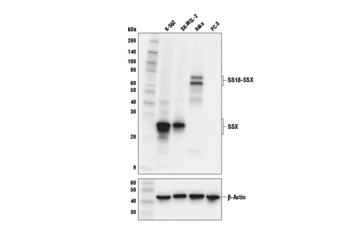 Western blot analysis of extracts from various cell lines using SSX (E5A2C) Rabbit mAb (Carboxy-terminal Antigen) (upper) or β-Actin (D6A8) Rabbit mAb #8457 (lower). As expected, PC-3 cells are negative for SSX expression.
