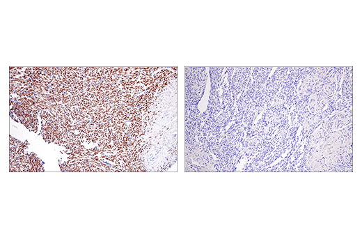 Immunohistochemical analysis of paraffin-embedded human synovial sarcoma using SSX (E5A2C) Rabbit mAb (Carboxy-terminal Antigen) (left) compared to concentration-matched Rabbit (DA1E) mAb IgG XP<sup>®</sup> Isotype Control #3900 (right).