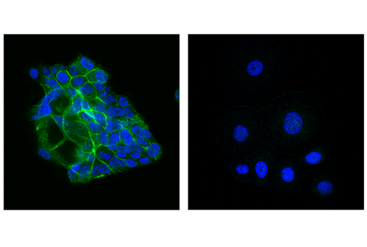Polyclonal Antibody Immunofluorescence Immunocytochemistry Activation of Mapkk Activity