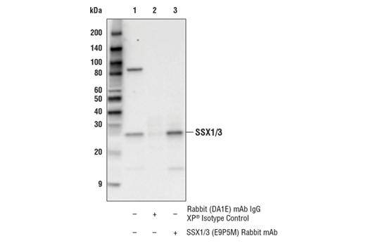 Monoclonal Antibody - SSX1/3 (E9P5M) Rabbit mAb (Amino-terminal Antigen), UniProt ID Q16384, Entrez ID 6756 #42734, Ssx1