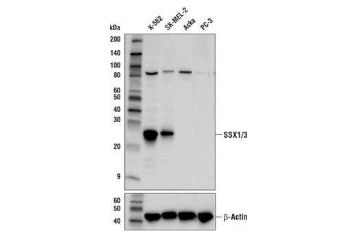 Western blot analysis of extracts from various cell lines using SSX1/3 (E9P5M) Rabbit mAb (upper) or β-Actin (D6A8) Rabbit mAb #8457 (lower). As expected, PC-3 and Aska cells are negative for SSX1/3 expression. Aska cell lysates were generated and provided by the Kadoch laboratory.