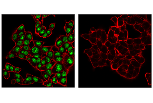 Immunofluorescence Image 1: ADAR1 (E6X9R) XP® Rabbit mAb