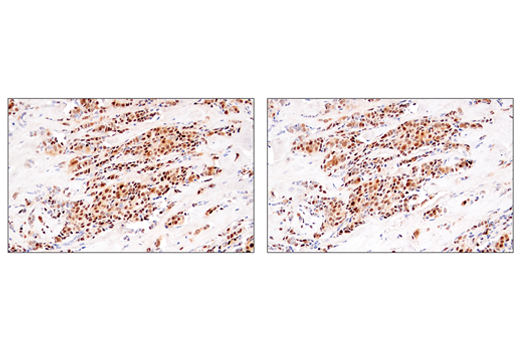 Immunohistochemical analysis of paraffin-embedded human ductal breast carcinoma using Cyclin D1 (E3P5S) XP<sup>®</sup> Rabbit mAb (left) or Cyclin D1 (92G2) Rabbit mAb #2978 (right). These two antibodies detect independent, unique epitopes on human cyclin D1. The similar staining patterns obtained with both antibodies help to confirm the specificity of the staining.