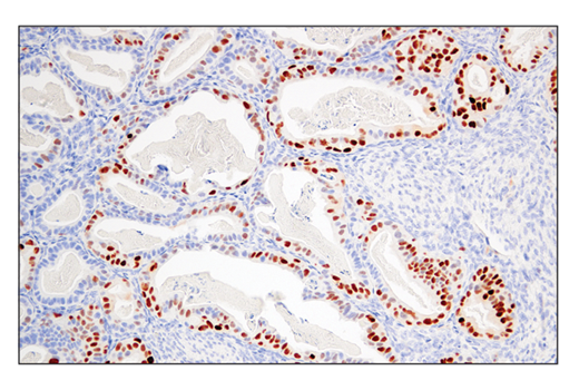 Monoclonal Antibody Ihc-Leica® bond™ Epithelial Cell Proliferation - count 2