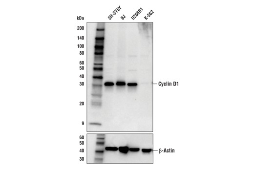 Western blot analysis of extracts from various cell lines using Cyclin D1 (E3P5S) XP® Rabbit mAb (upper) or β-Actin (D6A8) Rabbit mAb #8457 (lower).