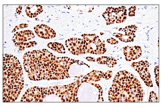 Immunohistochemical analysis of paraffin-embedded human squamous carcinoma of the tongue using Sox10 (E6B6I) XP<sup>®</sup> Rabbit mAb.
